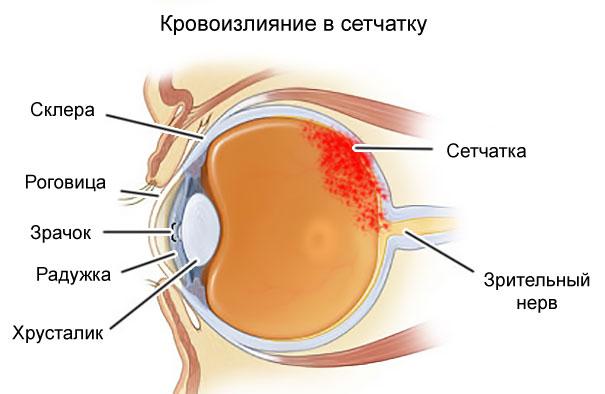 hipertóniás szemváltozások)