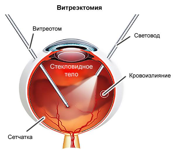 lítikus keverék magas vérnyomás ellen magas vérnyomás enciklopédia